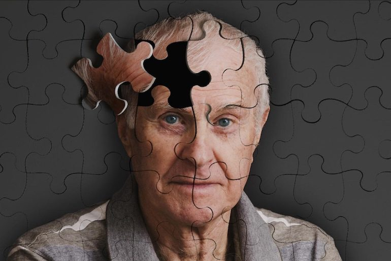 Нарушения когнитивной сферы у пожилых людей